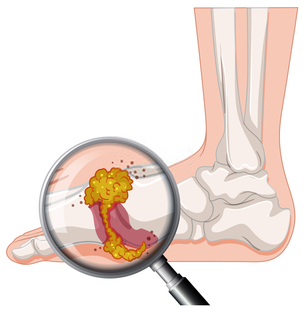 Diagnosis and Treatment of Gout