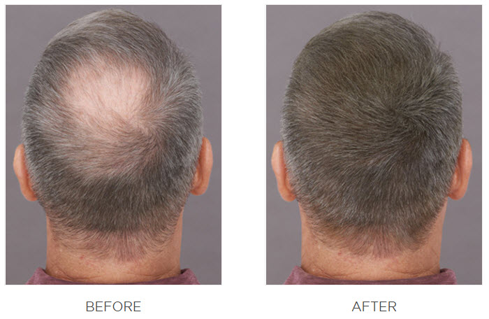 Hair Fortin before after