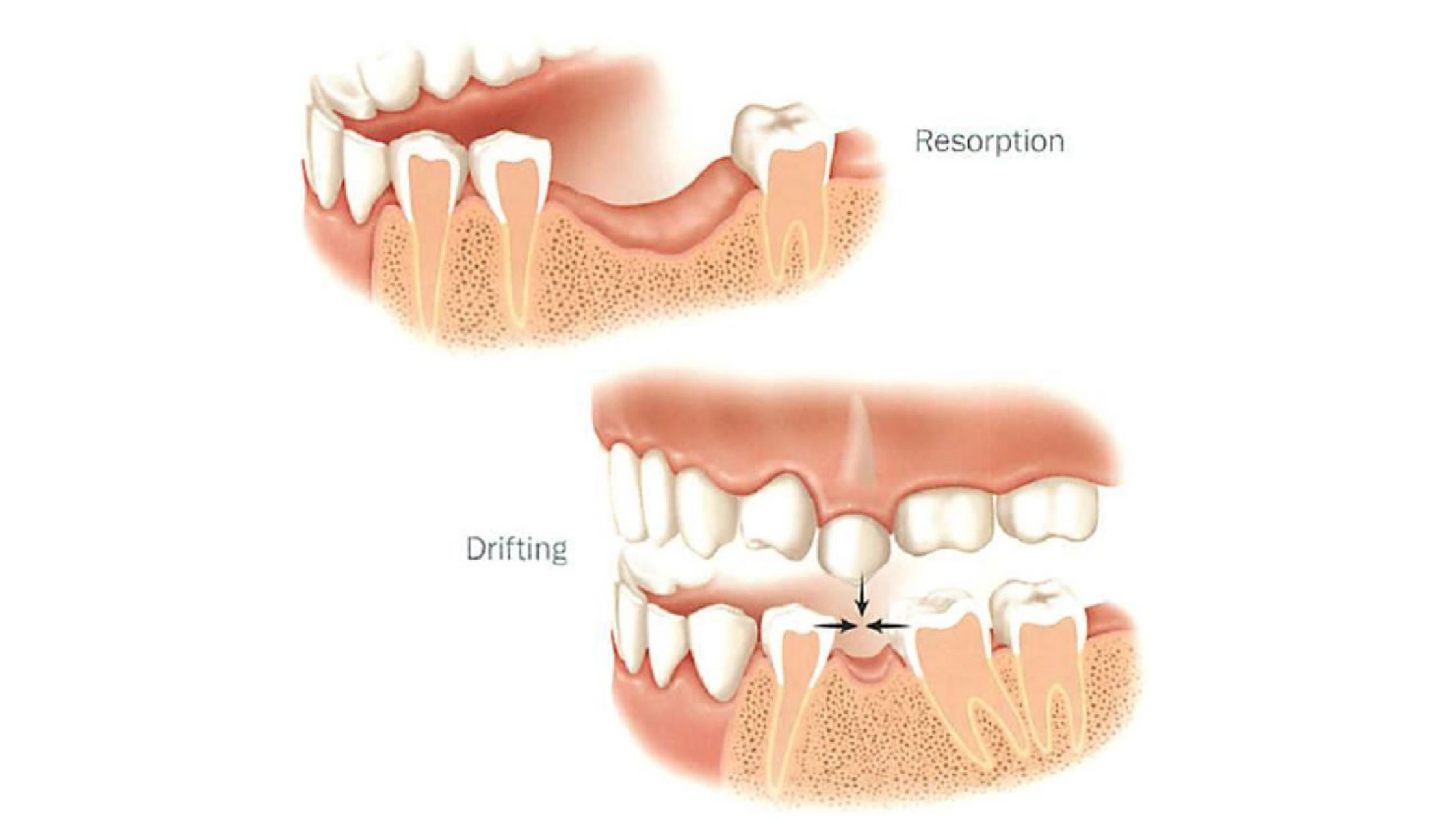 Effects of bone resorption on oral health