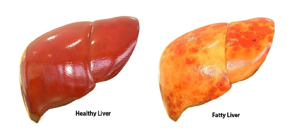 New treatment for fatty liver disease