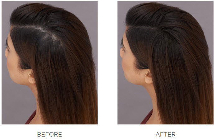 Best Hair Fibers - Does It Makes Hair Look Thicker?