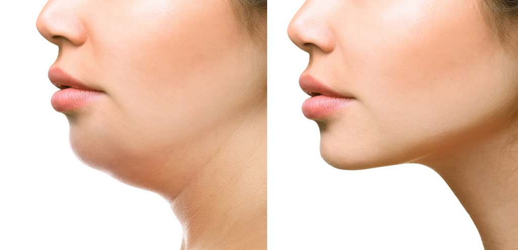 How To Lose Neck Fat? – Some Practical Tips That You Should Know