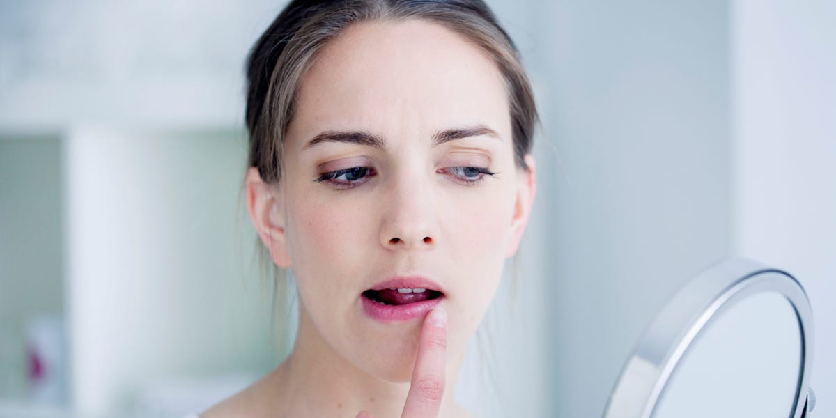 Top Remedies That You Need To Know For Curing Herpes Naturally Forever