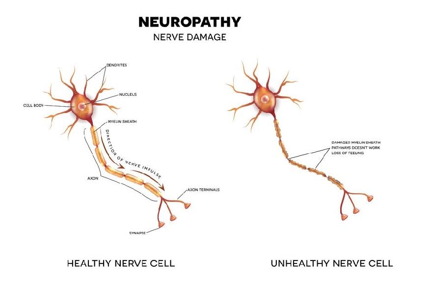 Neuropathy No More program