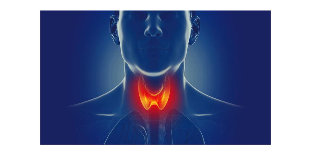 The Hypothyroidism Solution