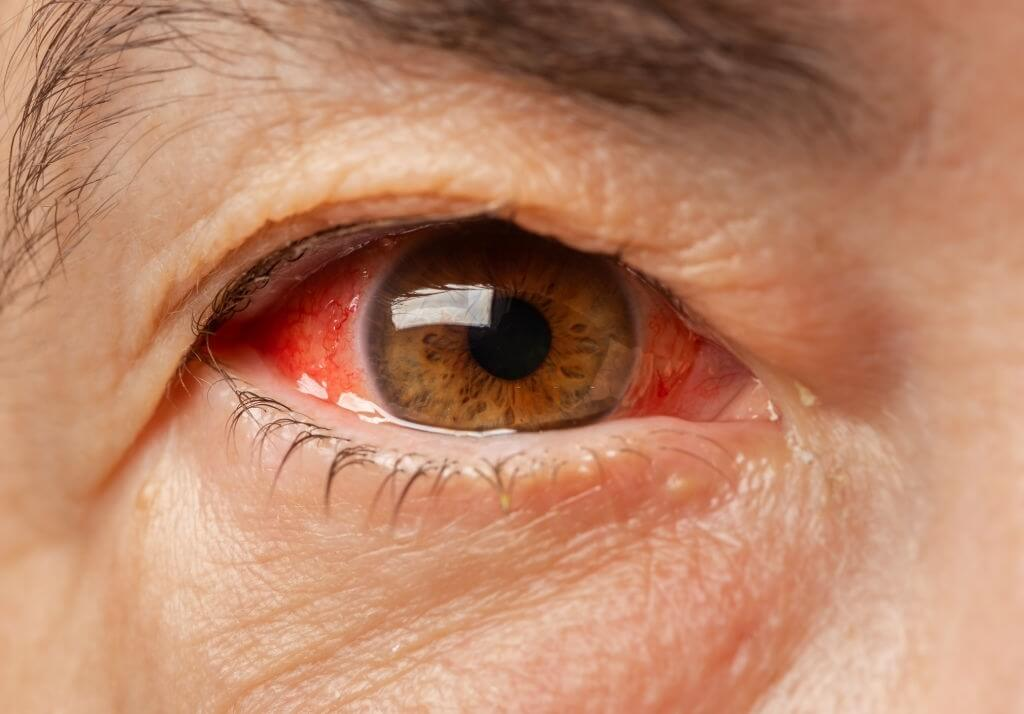 Signs-Of-An-Eye-Infection-1