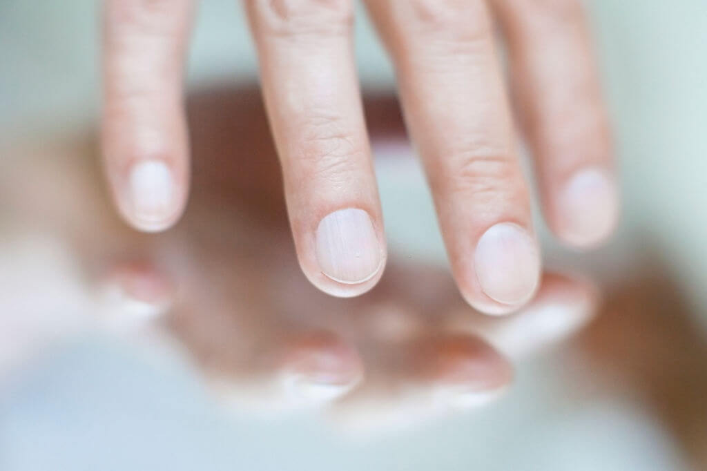 Is-Fingernails-Clue-to-Your-Health