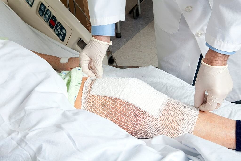 The Risks Of Knee Replacement Surgery