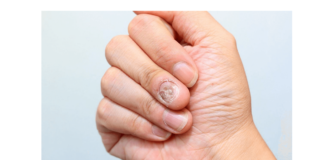 Nail Infection- Causes And Treatment Methods